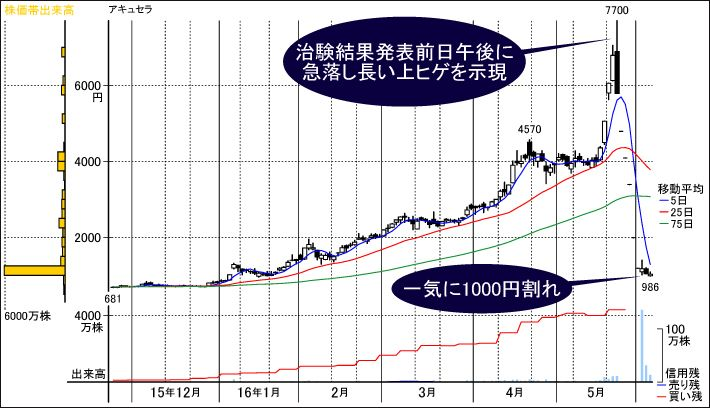 Mg 株価 アンジェス